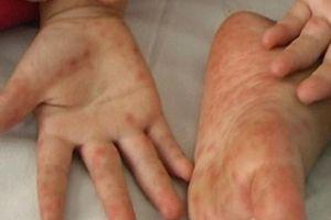 Bệnh tay chân miệng: Chủng virus EV 71 có thể gây chết người