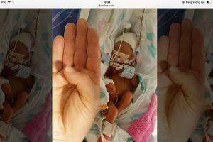 Sức sống phi thường của em bé sinh non nhỏ hơn bàn tay