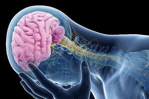 4 dấu hiệu đáng sợ của chứng phình mạch máu não ai cũng nên biết