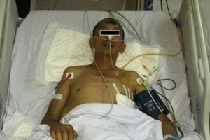 Truyền 9 lít máu mổ cứu nam công nhân rơi tầng 5 xuống đất