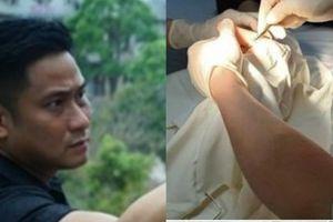 Diễn viên Minh Tiệp - Vũ sắt phim Quỳnh búp bê nhập viện mổ tay, fan lo lắng