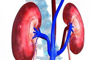 Nguyên nhân và dấu hiệu nhận biết bệnh sỏi thận