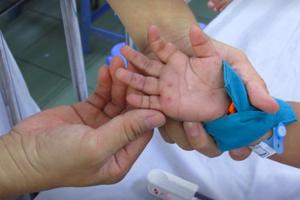 Quảng Ngãi: Gia tăng bệnh tay chân miệng, hơn 900 ca mắc