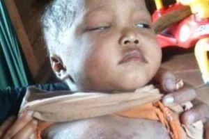 Cám cảnh bé trai mắc bệnh hiểm nghèo ăn cơm độn lá sắn qua ngày