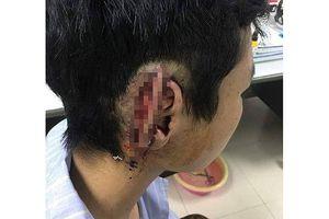 Học sinh bất ngờ bị bạn cùng trường cắn đứt và nhai nuốt vành tai