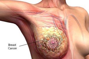 Tháng hành động vì ung thư vú, đã là phụ nữ bạn đừng quên 7 dấu hiệu này