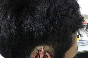 `Phê` cỏ Mỹ, nam thanh niên 16 tuổi cắn đứt tai bạn rồi nuốt vào chửng vào bụng
