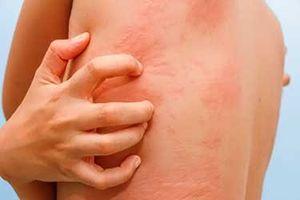 Giải pháp điều trị tận gốc rễ bệnh mề đay, mẩn ngứa dị ứng – Chống tái phát bệnh