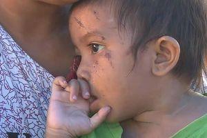 Bé gái 1 tuổi sống sót thần kỳ sau thảm họa kép ở Indonesia
