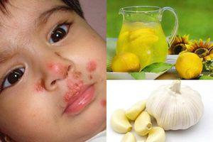 3 bài thuốc dân gian trị chân tay miệng ở trẻ