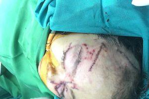 Bé 31 tháng tuổi bị chó cắn rách nát vùng mặt