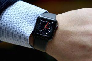 Những điều phổ biến nhất người dùng hay làm trên Apple Watch