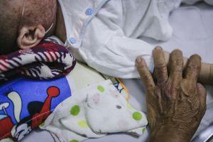 Bệnh viện nhi ở Sài Gòn quá tải vì dịch chồng dịch