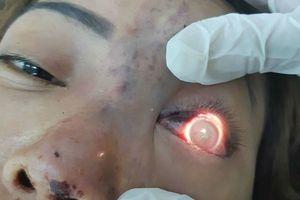 Tiêm filler suýt gây mù mắt, spa bị phạt 120 triệu đồng và đóng cửa 9 tháng