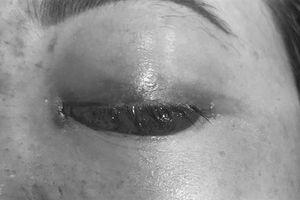 Khách bị mù mắt sau tiêm filler tại Spa nói gì?