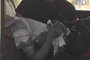 Yên Bái: Bảo vệ trường mầm non bị phụ huynh đâm trọng thương