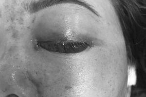 Phạt 120 triệu đồng spa tiêm filler khiến cô gái mù mắt