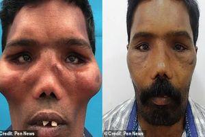 Người đàn ông mang 'khuôn mặt sư tử' suốt 23 năm vì bệnh siêu hiếm, thế giới mới có vài trường hợp