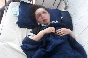 4 nghi can đánh nữ nhân viên Spa ở Gia Lai nhập viện bị triệu tập