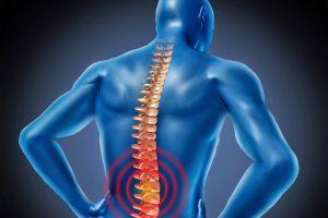 7 bài thuốc trị thoái hóa cột sống lưng rẻ tiền nhưng hiệu quả khỏi nghĩ