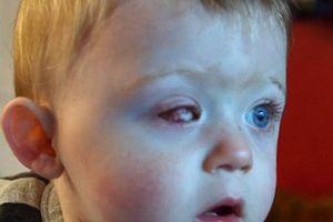 1 phút lại thêm 1 trẻ bị mù, dù 80% có thể phòng bệnh