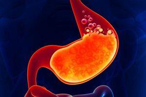 Để ngăn ngừa axit dạ dày, tránh thức ăn chiên, hút thuốc và rượu