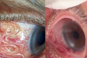 Cận cảnh gắp giun ký sinh dài 15cm ra khỏi mắt người