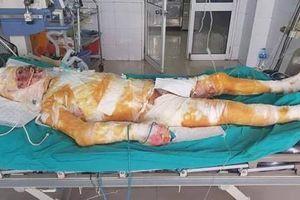 Hà Nam: Cứu hàng xóm thoát hỏa hoạn, chàng trai mồ côi bị bỏng 95% cơ thể