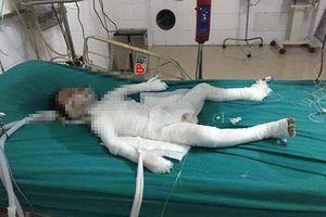 Bé trai 6 tuổi ở Hà Nội bị bố dượng tẩm xăng đốt bỏng 98% đã tử vong