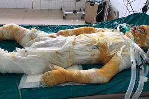 Giúp xưởng mộc chữa cháy, nam thanh niên 25 tuổi bị bỏng lột da toàn thân, tính mạng nguy kịch