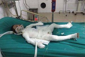 Bố dượng đổ xăng thiêu chết bé trai 6 tuổi ở Hà Nội có thể đối diện án tử hình