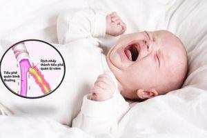 Viêm tiểu phế quản ở trẻ: Dấu hiệu nhận biết và cách điều trị