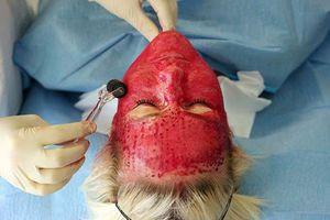 Những điều bạn chưa biết về làm đẹp bằng 'mặt nạ ma cà rồng'