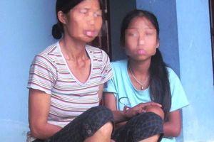 Nghệ An: Khởi tố gã hàng xóm đồi bại dâm ô bé gái