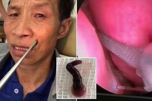 Clip: Đỉa hút máu trú ngụ trong mũi người đàn ông Điện Biên