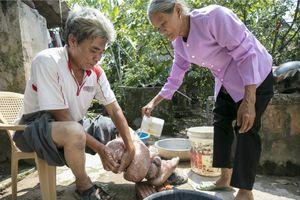 Việt Nam loại trừ được bệnh chân voi