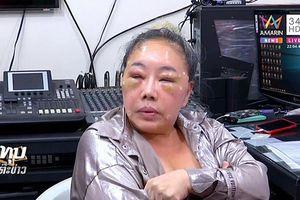 Sự thật việc nữ đại gia 60 tuổi ở Thái Lan bị đánh sưng vù mặt