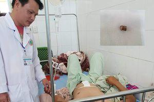 Một nông dân bị trúng đạn chì, ngã gục giữa vườn cà rốt