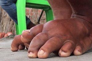 Việt Nam là một trong số ít quốc gia loại trừ được bệnh giun chỉ bạch huyết