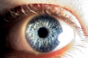Bị đột quỵ mắt do xem 'Diên Hi công lược' liên tục 7 ngày
