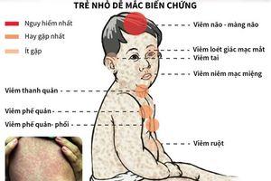 Những biến chứng nguy hiểm của bệnh sởi ở trẻ em