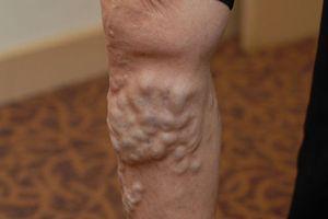 Đứng lâu bị tức chân, thay đổi màu da, cẩn thận mắc bệnh hay gặp ở phụ nữ