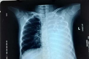 Bé gái ở Đồng Nai mắc bệnh cực hiếm chưa đến 20 ca trên thế giới