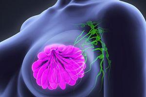 Trí tuệ nhân tạo của Google phát hiện ung thư vú chính xác hơn bác sỹ