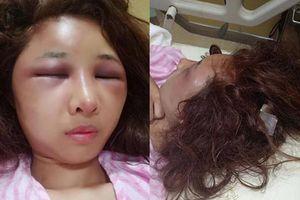 Vợ xinh đẹp bị chồng đánh biến dạng gương mặt chỉ vì để người yêu cũ đưa về nhà khi say rượu