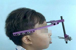 Kéo giãn xương hàm tới 20cm để tái tạo khuôn mặt cho bé trai 10 tuổi