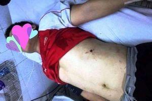 Thanh Hóa: Công an thông tin về vụ hỗn chiến bằng súng khiến 5 người nhập viện
