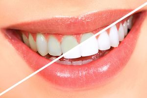 Sai lầm khi tẩy trắng răng tại nhà có thể gây hậu quả khôn lường