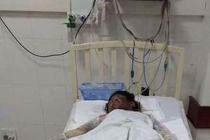 Quảng Nam: Ba người trong gia đình thiệt mạng do bỏng xăng