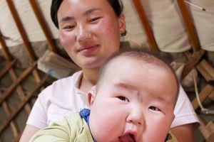 Béo phì đáng báo động, người Mông Cổ nỗ lực cắt giảm khẩu phần ăn
